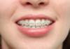 Răng hô – Nguyên nhân, biểu hiện và cách điều trị hiệu quả nhất