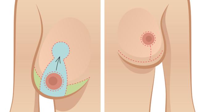 Ngực chảy xệ là như thế nào: biểu hiện – cách khắc phục